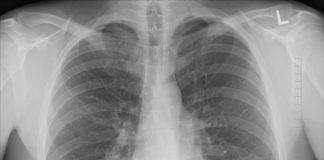 Tumore polmoni test del sangue