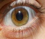 occhi maculopatia glaucoma