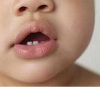 Sindrome bambino scosso