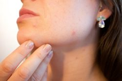 eczema pelle