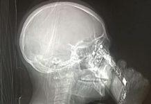 Donna esame radiografia cellulare