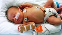 Mamma inietta sangue a bambino disabile in ospedale