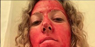 Ragazza viso sangue ciclo