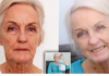 Donna anziana diventa giovane