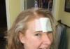 Donna melanoma